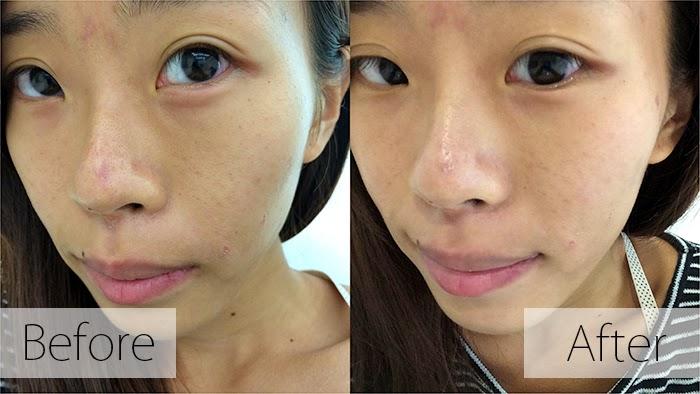 納米技術進入美容行業